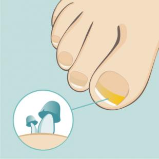 Wspomaganie leczenia grzybicy paznokci