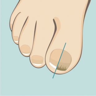 Rekonstrukcja paznokci